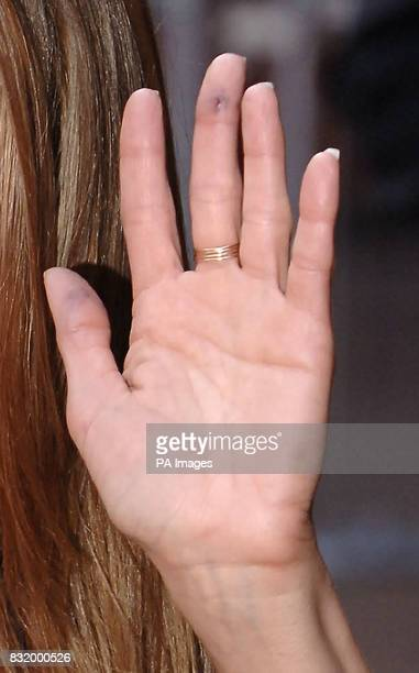 Jennifer Aniston with a cut/bruise on her finger as shearrives at the UK film premiere of The Break Up at the Vue West End cinema central London
