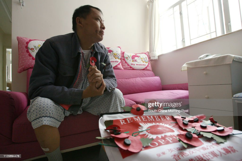 Jeremy Chan Tai-keung, former soldier in Hong Kong regiment for British army who suffered from kidney disease and diabetes, pictured at his home. 02 November 2007 : Fotografía de noticias