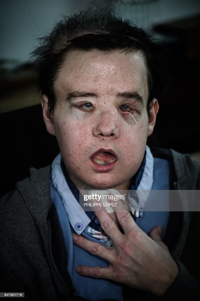 Jerome Hamon The First Man In The World To Twice Undergo A Face Transplant After Flu Tablets Incompatible With His Anti Rejection Treatment Led To The