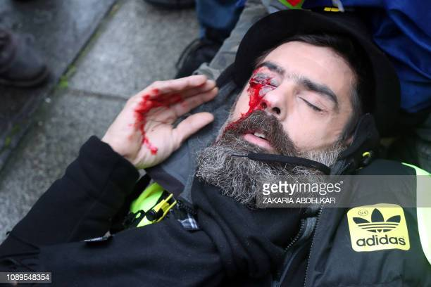TOPSHOT Jerome Rodrigues one of the leaders of the yellow vest movement lies on the street after getting wounded in the eye during clashes with riot...
