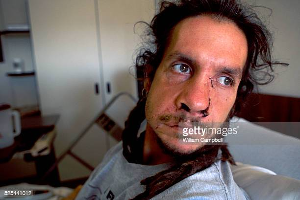 Jesshua Amun recovering in the Eastern Idaho Medical Center after being attacked by a female grizzly bear near West Yellowstone Montana in late...