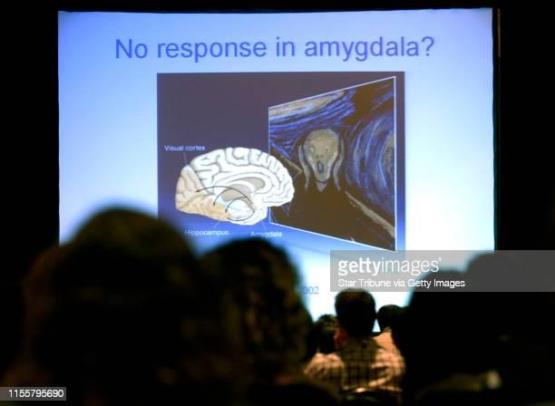MCLEISTER ¥ jmcleister@startribunecom MinneapolisMnThursAug 16 2007One of the images projected during Maria Veldhuizen's talk entitled Neuroimaging...