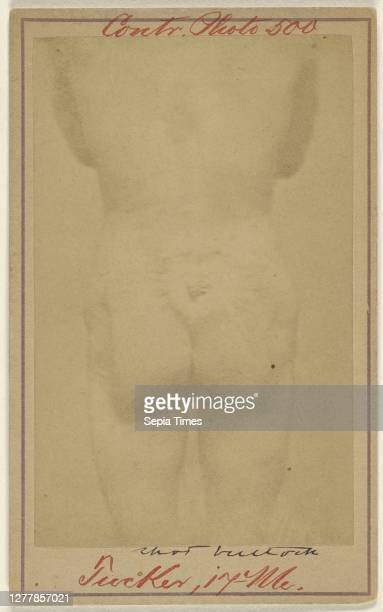 Jno. E. Tucker, shot in the buttocks, Civil War victim; American; 1865 - 1870; Albumen silver print.