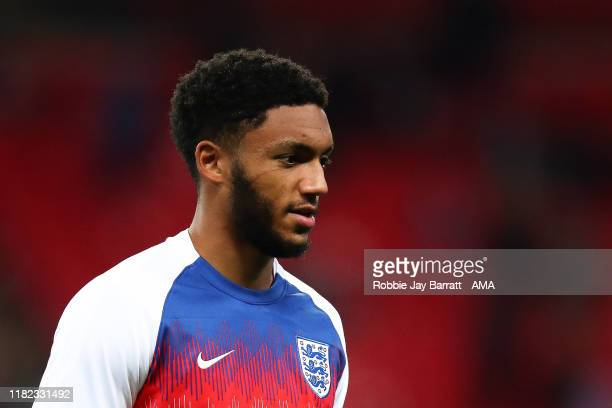 Joe Gomez of England with a scratch on his face from the scuffle with Raheem Sterling of England earlier in the week before the UEFA Euro 2020...