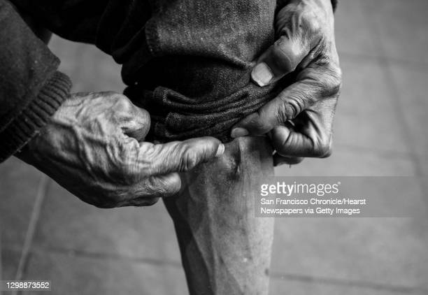 Joe White a homeless man for the past 6 years, shows a scar left from a cyst that formed after a botched knee surgery that still pains him while...
