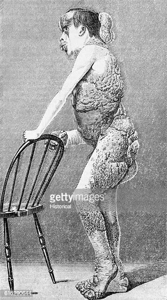 John Merrick The Elephant Man leans against a chair displaying the deformities caused by the disease Neurofibromatosis
