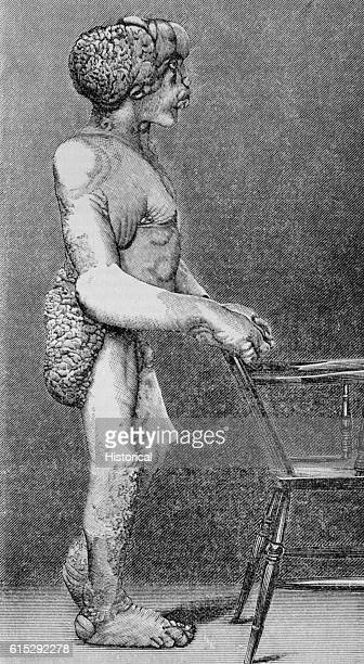 John Merrick The Elephant Man stands in right profile behind a chair to illustrate the deformities caused by his disease Neurofibromatosis