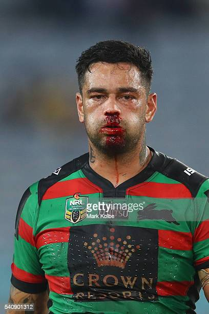 John Sutton of the Rabbitohs leaves the field at half time with a bleeding nose during the round 15 NRL match between the South Sydney Rabbitohs and...