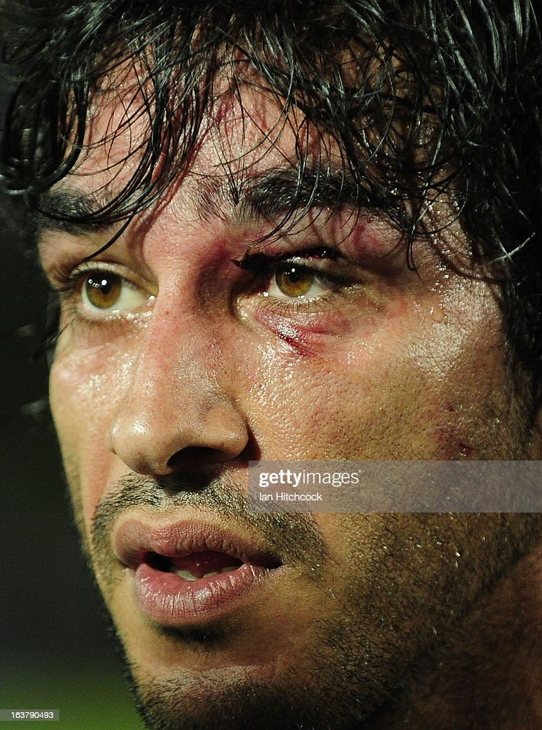 Johnathan Thurston of the Cowboys looks on with an injured eye area during the round two NRL match between the North Queensland Cowboys and the Melbourne Storm at 1300SMILES Stadium on March 16, 2013 in Townsville, Australia.
