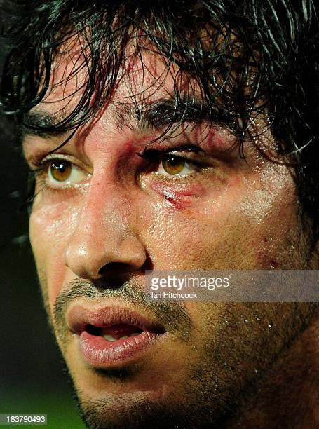 Johnathan Thurston of the Cowboys looks on with an injured eye area during the round two NRL match between the North Queensland Cowboys and the...