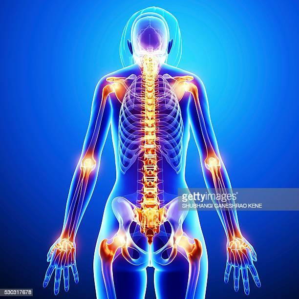 joint pain, computer artwork. - femur fotografías e imágenes de stock