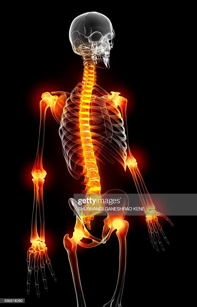 Joint pain, computer artwork. : Stock Photo