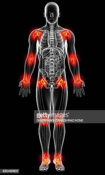 joint pain, computer artwork. - 人体部位 ストックフォトと画像