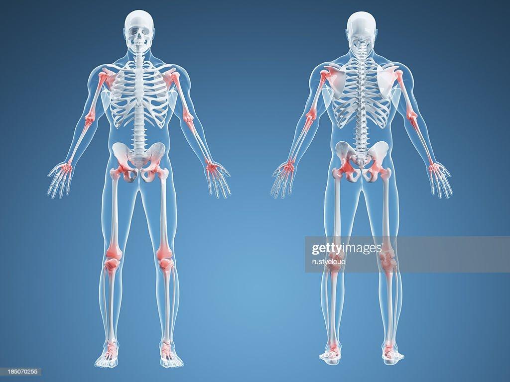 Joint Pain Illustration : Stock Photo
