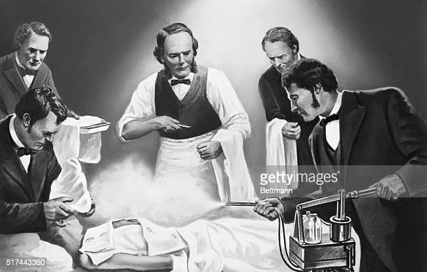 Joseph Lister directing use of carbolic acid spray in one of his earliest antiseptic surgical operations circa 1865