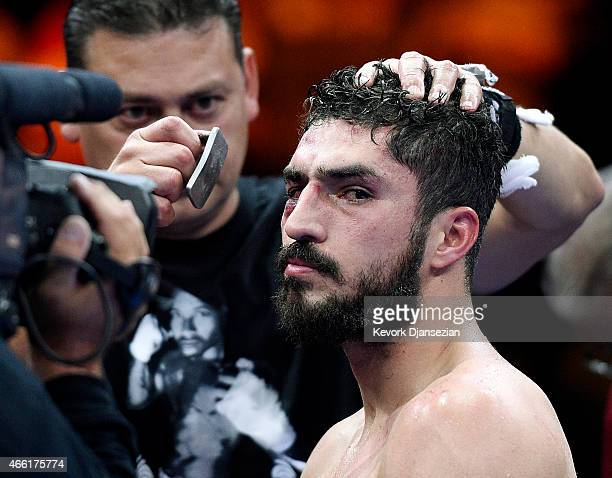 Josesito Lopez gets treatment as he looks at Andre Berto's corner after getting knocked out in the 6 round of the 12 round welterweight bout at...