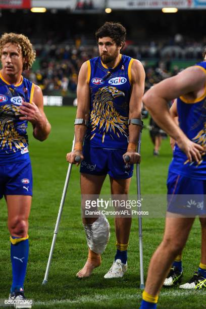 Josh Kennedy of the Eagles leans on crutches during the 2017 AFL round 10 match between the West Coast Eagles and the GWS Giants at Domain Stadium on...
