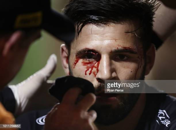 Josh Mansour of the Panthers gets treatment for a cut to his eye during the round 21 NRL match between the Penrith Panthers and the Canberra Raiders...