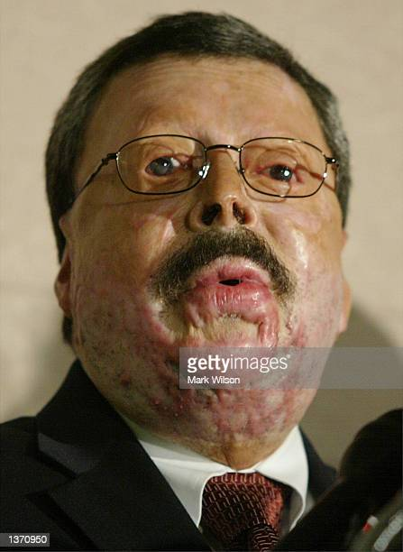 Juan A Cruz Santiago speaks during a ceremony honoring the doctors and nurses of the Washington Hospital Center's Burn Unit September 6 2002 in...