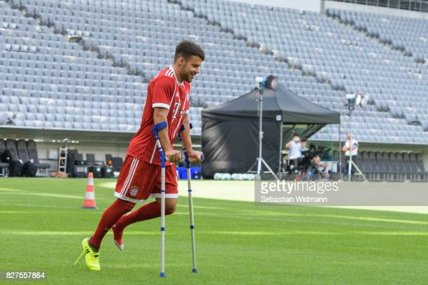 Juan Bernat of FC Bayern Muenchen arrives on crutches during the team presentation at Allianz Arena on August 8 2017 in Munich Germany