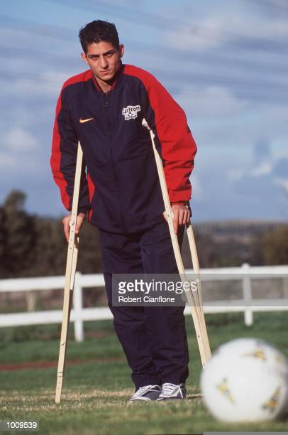 Simon Colosimo of the Australian Socceroos at home prior to his operation on Saturday His knee was badly damaged after being tackled by Andy Cole of...