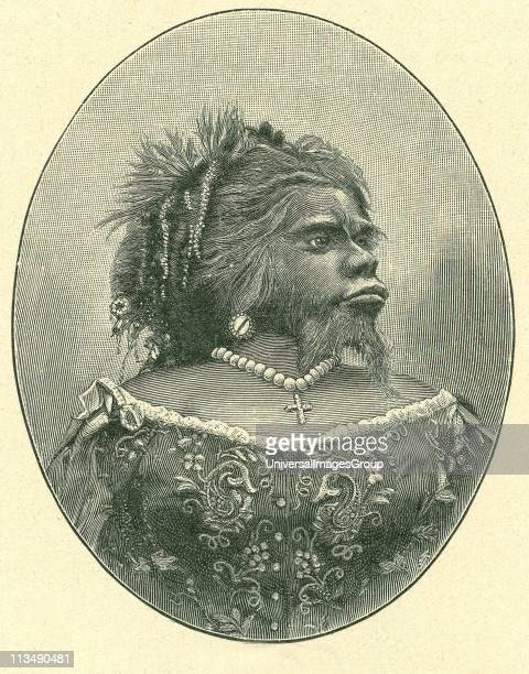 Julia Pastrana the Mexican bearded woman She suffered from congenital hirsutism combined with gingival hyperplasia Displayed in the US as a circus...