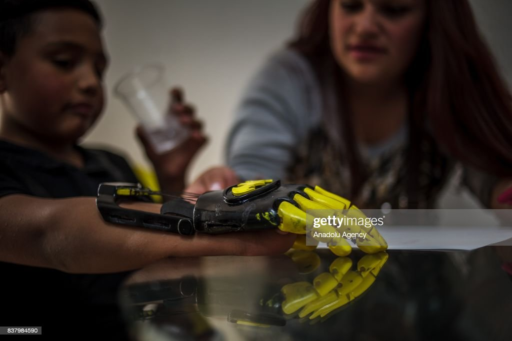 Julian Castillo (L) and his aunt Briyid Castillo design a 3D printed hand for Julian at Foundation of Materialization 3D in Bogota, Colombia August 08, 2017. A group of volunteers of the nonprofit project 'Do it yourself' of Foundation of Materialization 3D provide hands and arms to those born with missing limbs or who lost them on war, disease or natural disaster, at the Build It Workspace studio, which teaches people how to use high-tech printers.