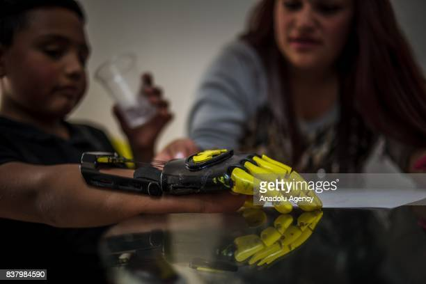 Julian Castillo and his aunt Briyid Castillo design a 3D printed hand for Julian at Foundation of Materialization 3D in Bogota Colombia August 08...