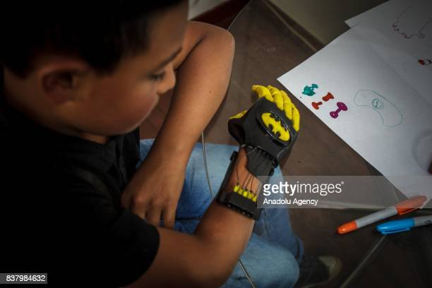 Julian Castillo looks his newly designed 3D printed hand with a Batman logo on it at Foundation of Materialization 3D in Bogota Colombia August 08...