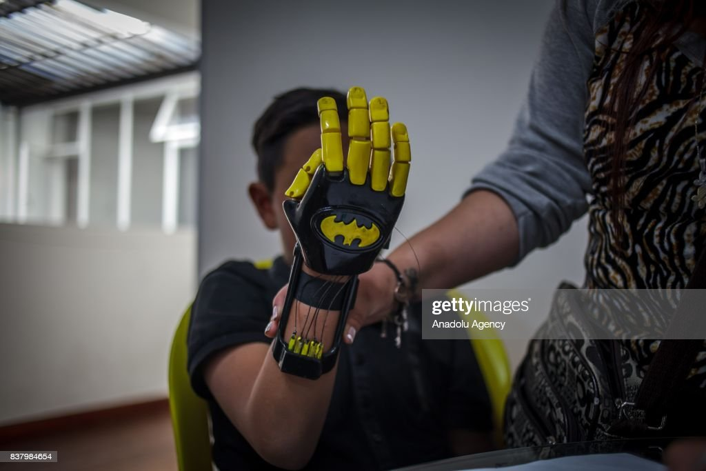 Julian Castillo shows his newly designed 3D printed hand with a Batman logo on it at Foundation of Materialization 3D in Bogota, Colombia August 08, 2017. A group of volunteers of the nonprofit project 'Do it yourself' of Foundation of Materialization 3D provide hands and arms to those born with missing limbs or who lost them on war, disease or natural disaster, at the Build It Workspace studio, which teaches people how to use high-tech printers.