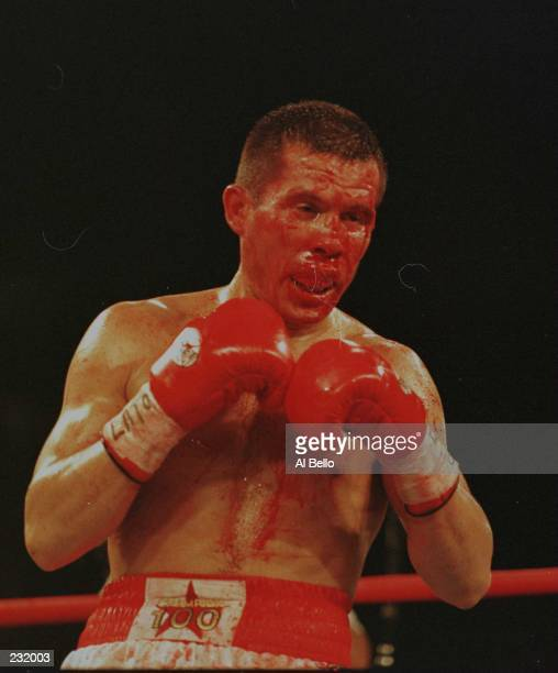 Julio Cesar Chavez bleeds excessively after receiving a cut under his left eye during his WBC Super Lightweight title bout verus Oscar De La Hoya at...
