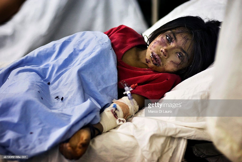Bruised and wounded girl (8-9) lying in hospital bed