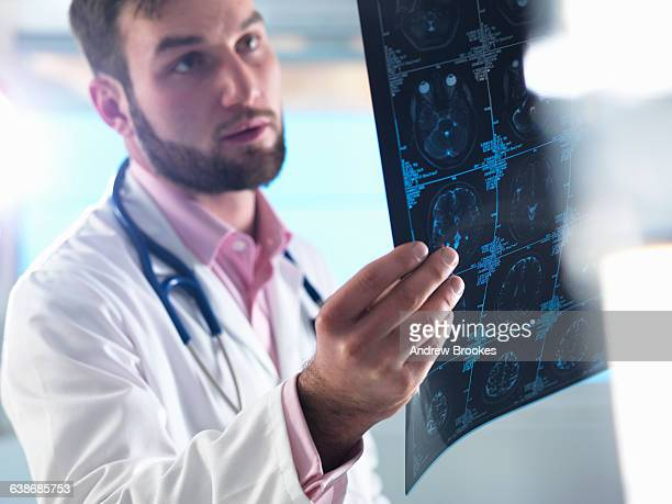 Junior doctor examining a brain scan in hospital