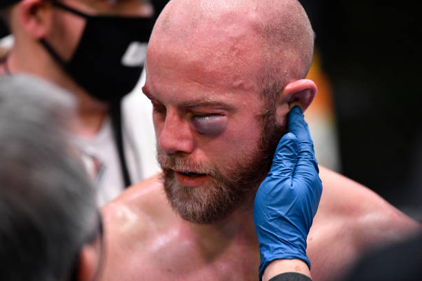 Justin Jaynes reacts after the doctor stops his 160-pound catchweight fight against Devonte Smith during the UFC Fight Night event at UFC APEX on...
