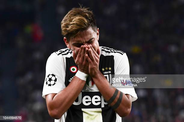 Juventus' Argentine forward Paulo Dybala reacts after being hit in the face during the UEFA Champions League group H football match between Juventus...