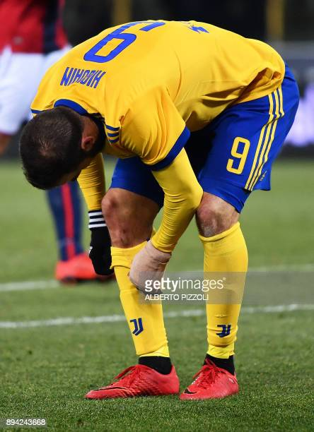 Juventus's forward from France Gonzalo Higuain checks his knee during the Italian Serie A football match Bologna vs Juventus on December 17 2017 at...