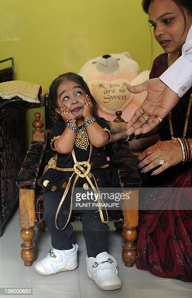 Jyoti Amge reacts as she receives birthday greetings from relatives at her residence in Nagpur on December 16, 2011. Amge is currently recognized as...
