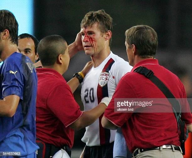 FIFA WM 2006 Gruppe E Italien USA 11 Kaiserslautern der durch ein Foul von Italiens Daniele de Rossi verletze Brian McBride mit blutender Wunde