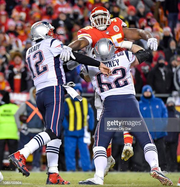 Kansas City Chiefs defensive end Chris Jones couldn't get to New England Patriots quarterback Tom Brady in the second quarter due to the blocking of...