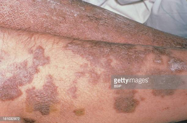 Kaposi's Disease