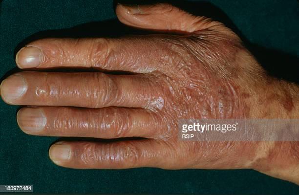 Kaposis Disease