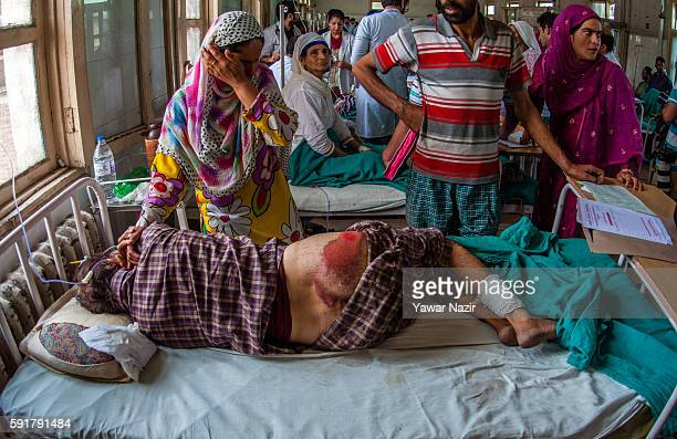 Kashmir woman cries in hospital as his relative lies injured on a hospital bed after he was thrashed by Indian government forces following violence...