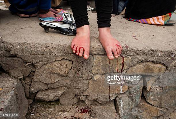 A Kashmiri girl lets blood from her feet drip down after receiving leech therapy on March 21 in Srinagar the summer capital of Indian administered...