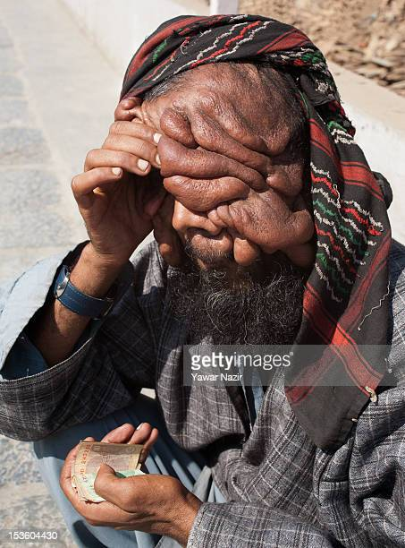 Kashmiri muslim man Mohmmed Latif Khatana with the rare condition Human Papilloma Virus begs on a road side on October 07 2012 in Srinagar the summer...