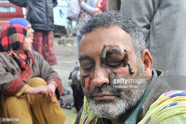 Kashmiri patient receives leech therapy session on a shallow side of a lake on March 21 2016 in Srinagar India Nowruz the Persian New Year marks the...