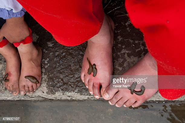 Kashmiri patients receive leech therapy from practitioners on March 21 in Srinagar the summer capital of Indian administered Kashmir India Nowruz the...