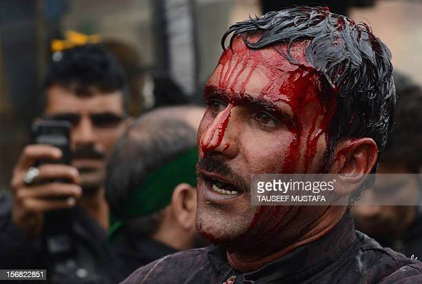 Kashmiri Shiite Muslim reacts after performing an act of self-flagellation with a sharp knife during a religious procession held on the seventh day...