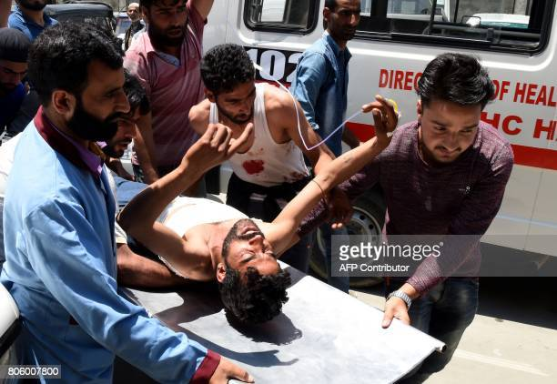 Kashmiri villagers bring a resident injured by Indian security personnel to the main hospital in Srinagar on July 3 2017 Two suspected rebels were...