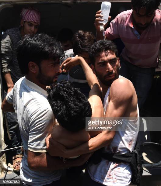 Kashmiri villagers help a resident injured by Indian security from an ambulance at the main hospital in Srinagar on July 3 2017 Two suspected rebels...