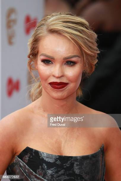 Katie Piper attends the Virgin TV BAFTA Television Awards at The Royal Festival Hall on May 14 2017 in London England